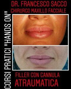 Implantologia Nocera A Carico Immediato Salerno Avellino